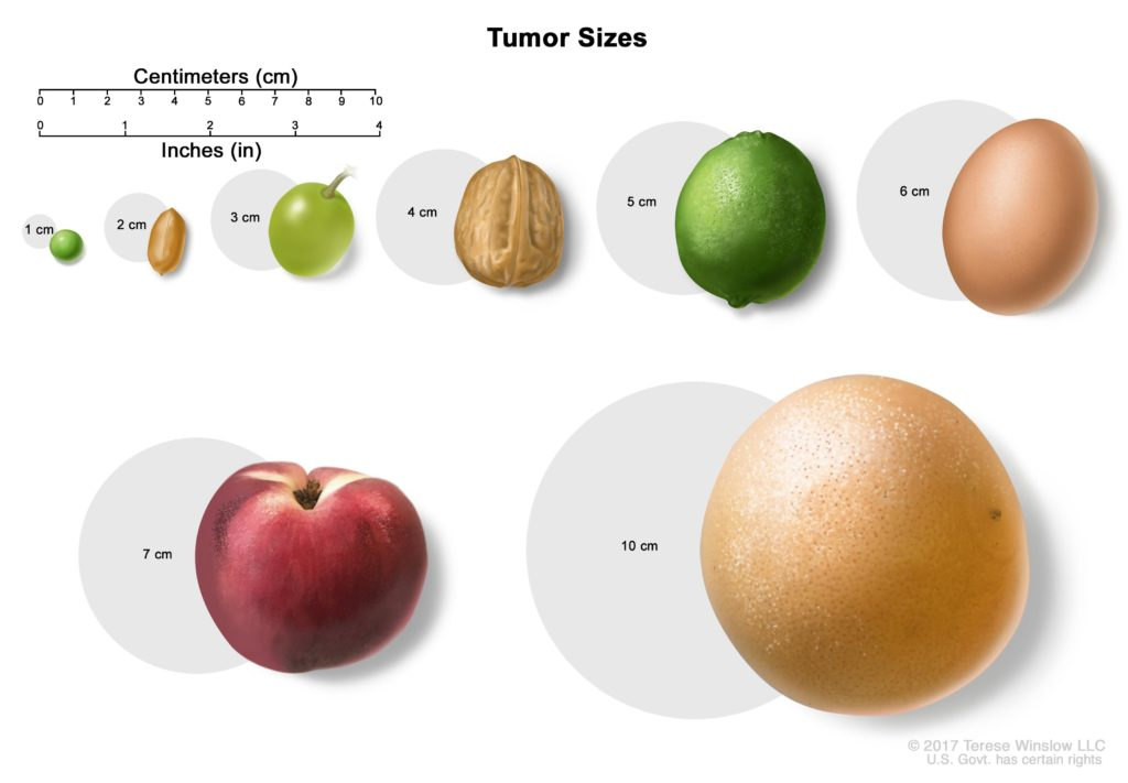 Tumor sizes are often measured in centimeters (cm) or inches. Common food items that can be used to show tumor size in cm include: a pea (1 cm), a peanut (2 cm), a grape (3 cm), a walnut (4 cm), a lime (5 cm or 2 inches), an egg (6 cm), a peach (7 cm), and a grapefruit (10 cm or 4 inches).